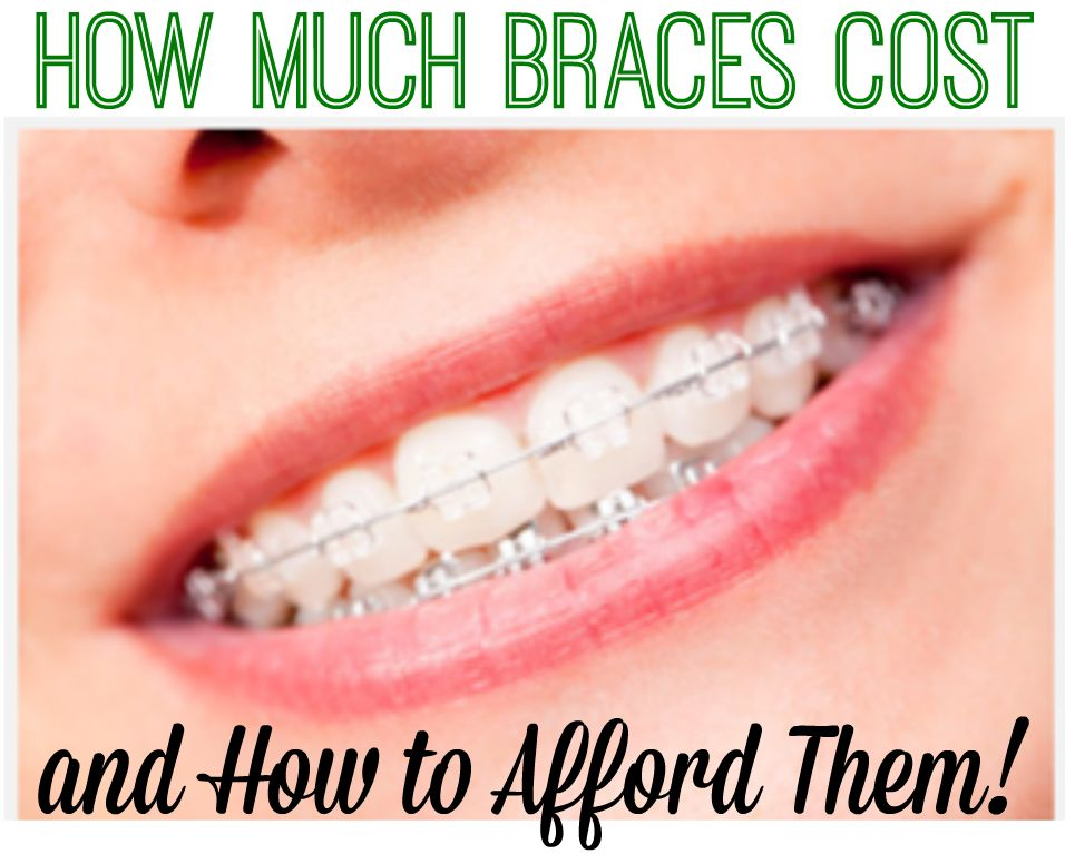 How Much Braces Cost and How To Afford Them